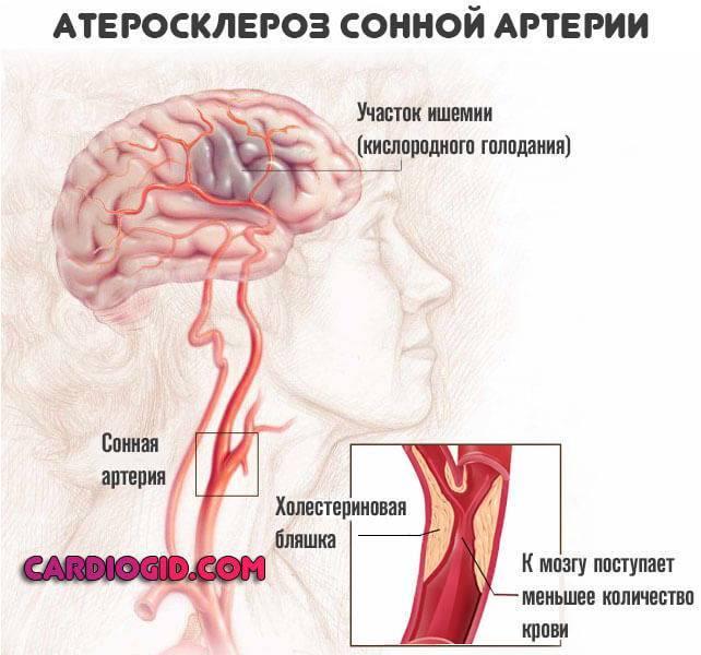атеросклероз-сонной-артерии
