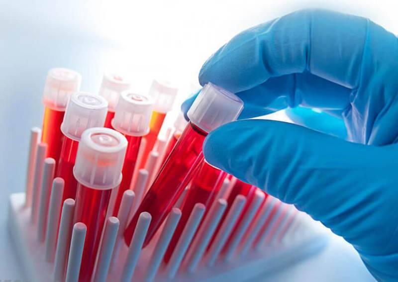 Густая кровь: симптомы, которые нельзя игнорировать!