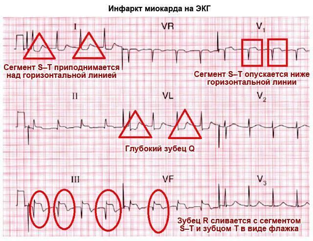 Кардиограмма здорового сердца как выглядит