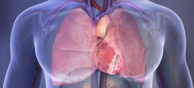 Лечение инфекционного эндокардита
