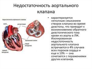 Склеродегенеративные изменения аорты