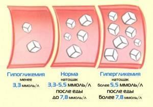 От чего повышается глюкоза в крови